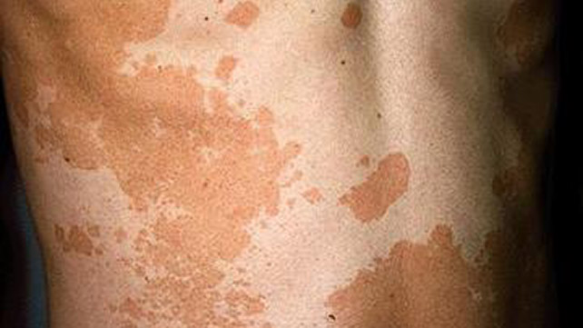 Discolored Skin Patches Pictures Causes And Treatments