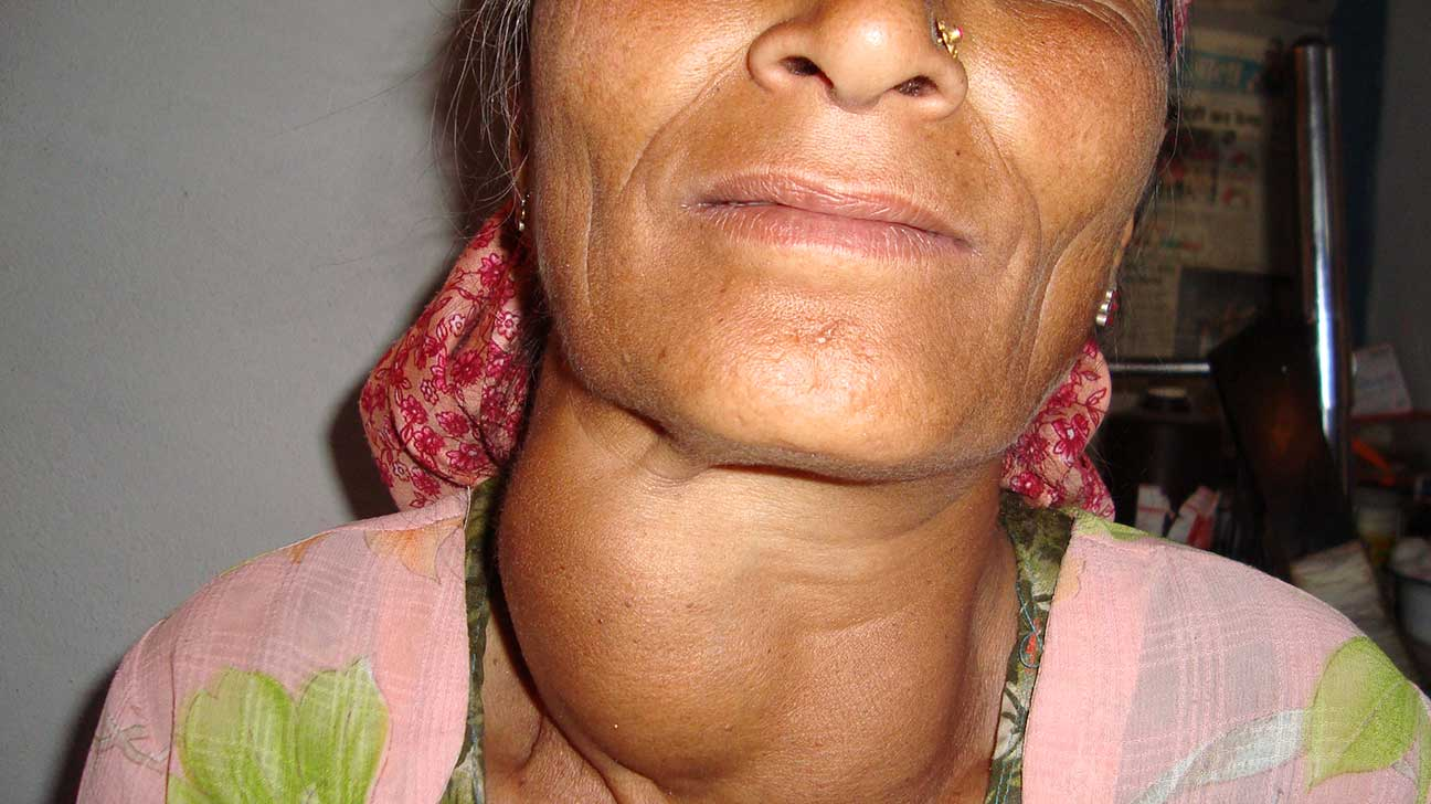 Neck Lump: Pictures, Causes, Associated Symptoms, and More