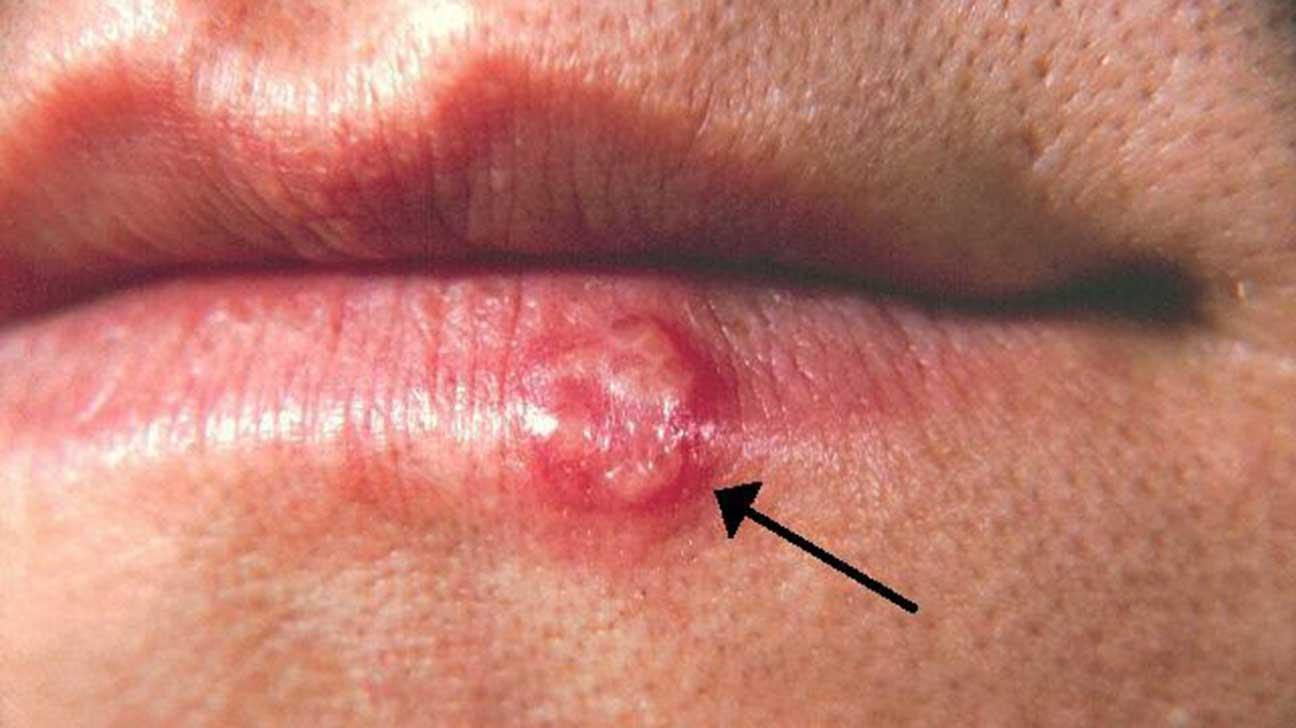 Conditions that cause skin lesions, with pictures
