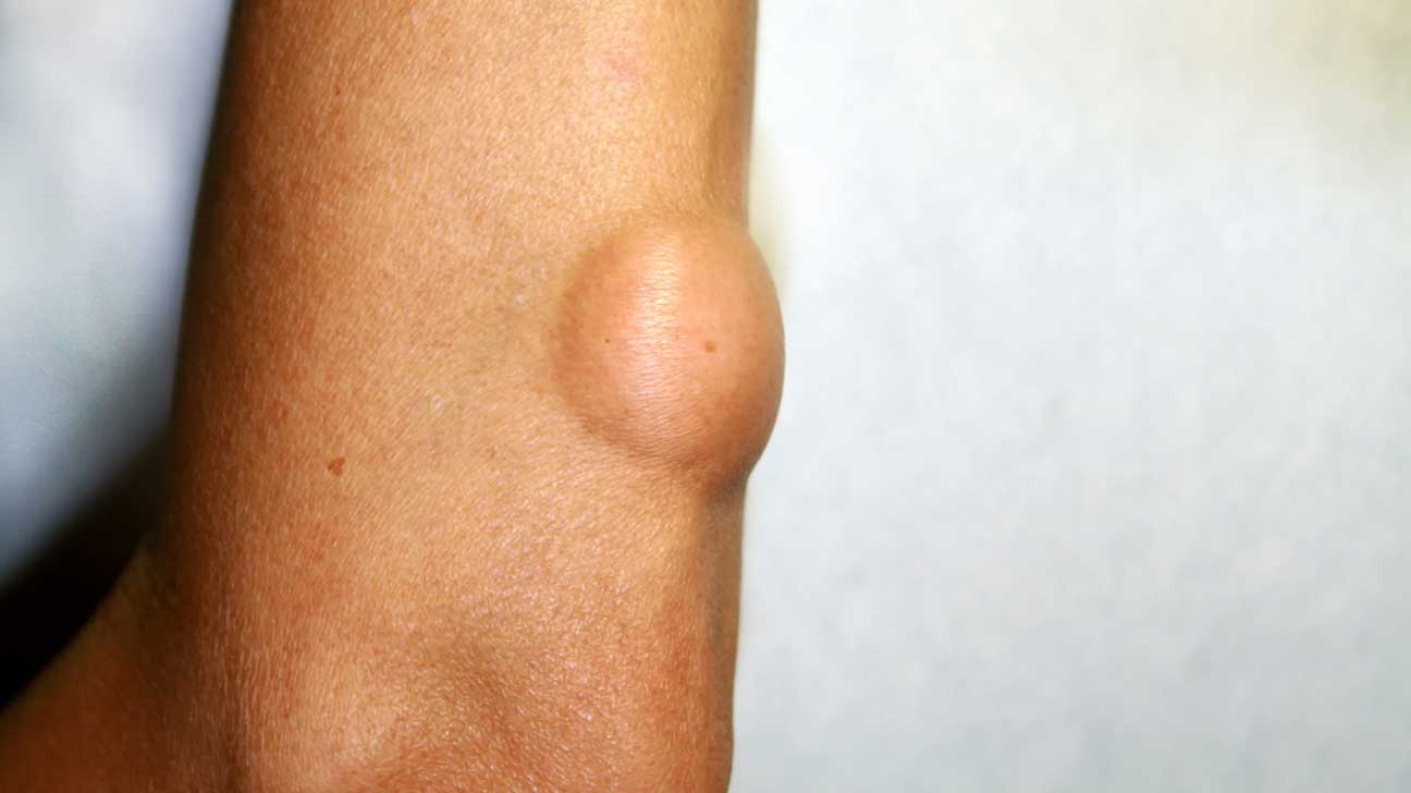 Raised Skin Bumps: Pictures, Types, Causes, and Treatment