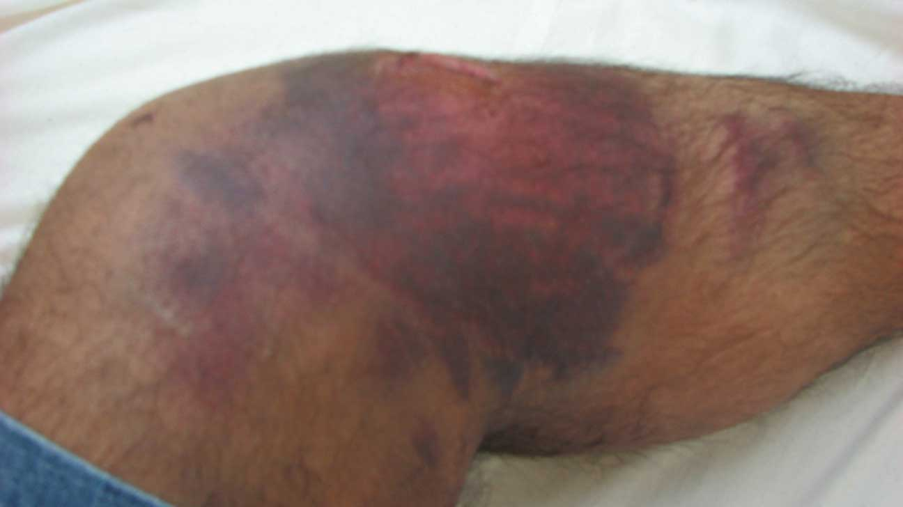 Bruise: Pictures, Types, Symptoms, and Causes