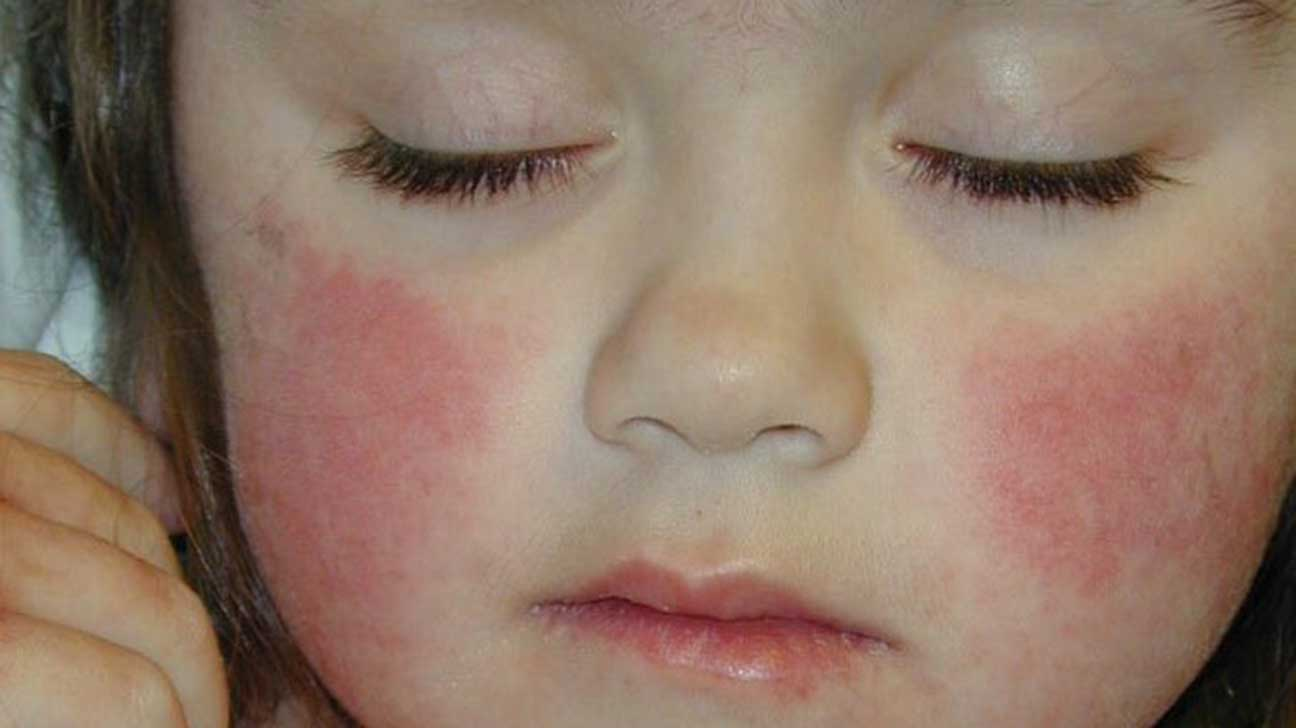 Skin Blushing and Flushing: Pictures, Causes, Issues, and ...  Flushed