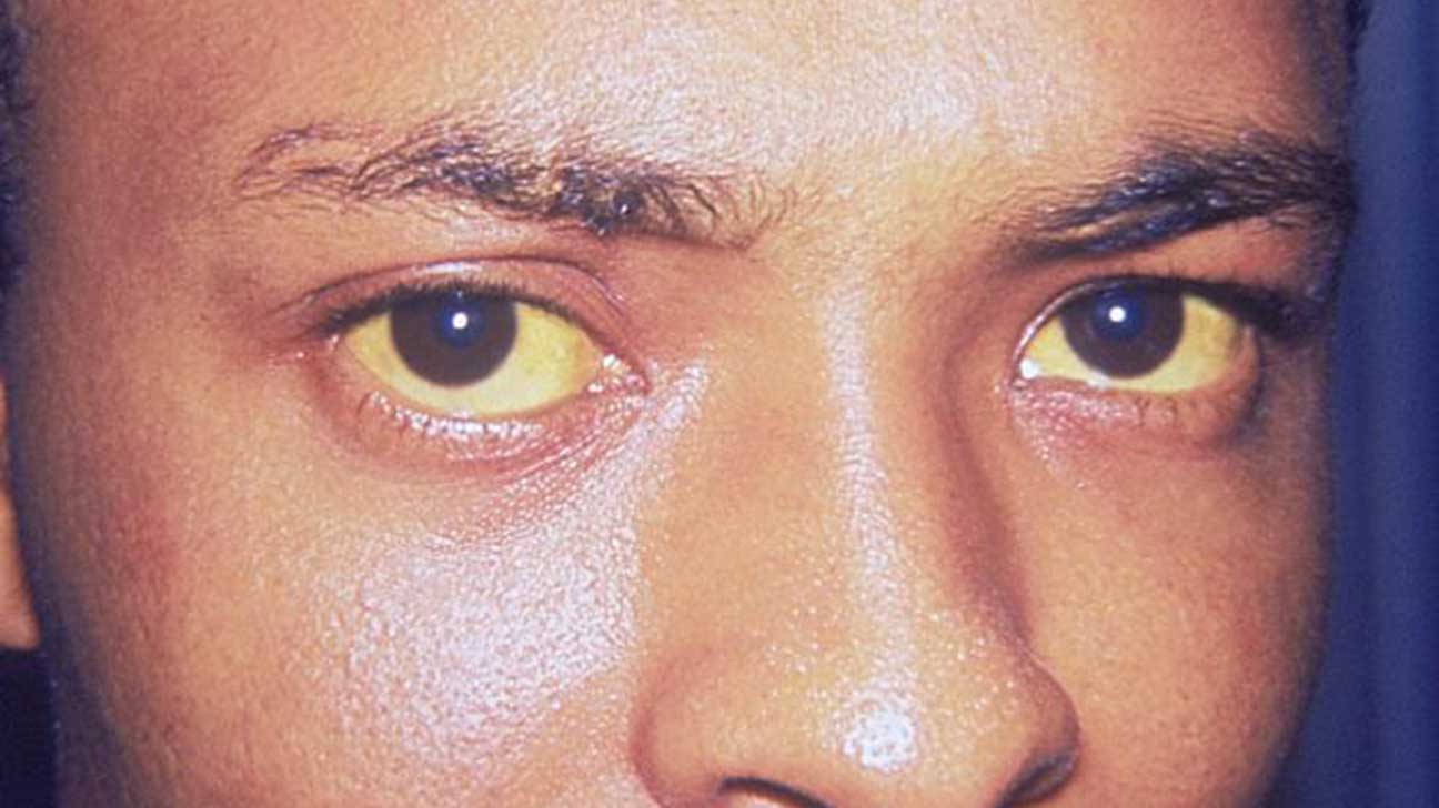 Yellow Skin (Jaundice): Pictures, Symptoms, Causes, and