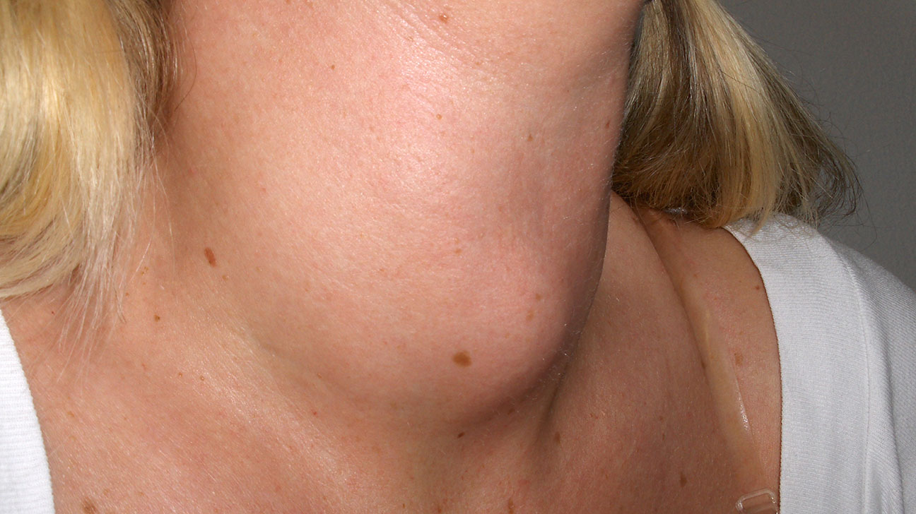 Skin Blushing and Flushing: Pictures, Causes, Issues, and Prevention