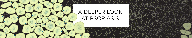 A Deeper Look at Psoriasis