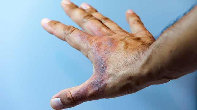 Burns: Types, Symptoms, and Treatments
