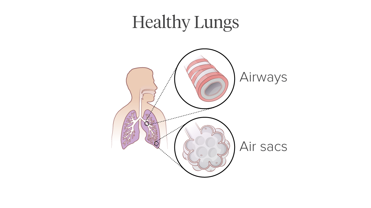 Pictures of copds effect on the lungs healthy lung illustration ccuart Image collections