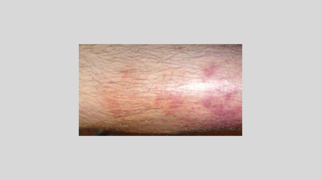 Cellulitis: Causes, Symptoms, Treatments, and Pictures