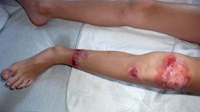 Impetigo: Symptoms, Causes, Pictures, and Treatment