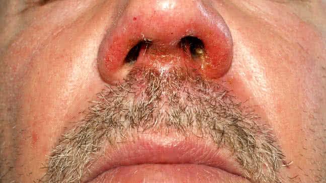 Impetigo Symptoms Causes Pictures And Treatment
