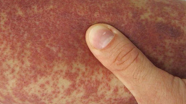 Purpura: Causes, Diagnosis, Treatment, and Pictures
