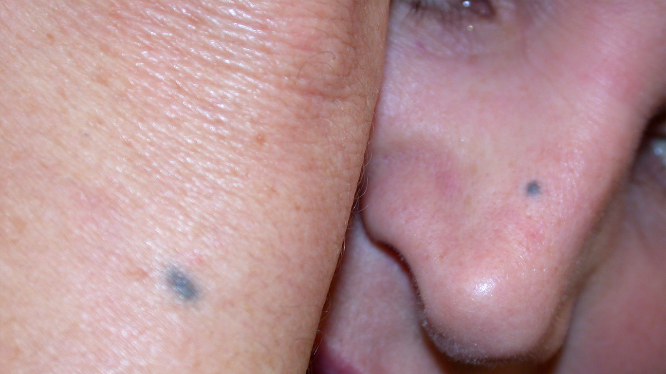 Blue Nevus Identification Removal And More