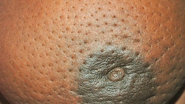 7 Pictures Of Breast Cancer