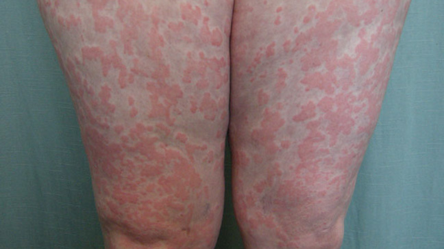 Chronic Idiopathic Urticaria Pictures Symptoms And Treatment