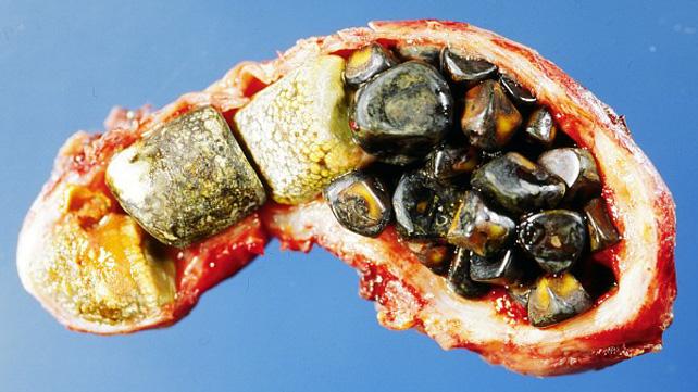Marvelous Gallstones Symptoms Causes Risks Treatment Diet More Evergreenethics Interior Chair Design Evergreenethicsorg