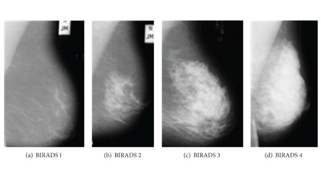 Mammogram Images Understanding Your Results
