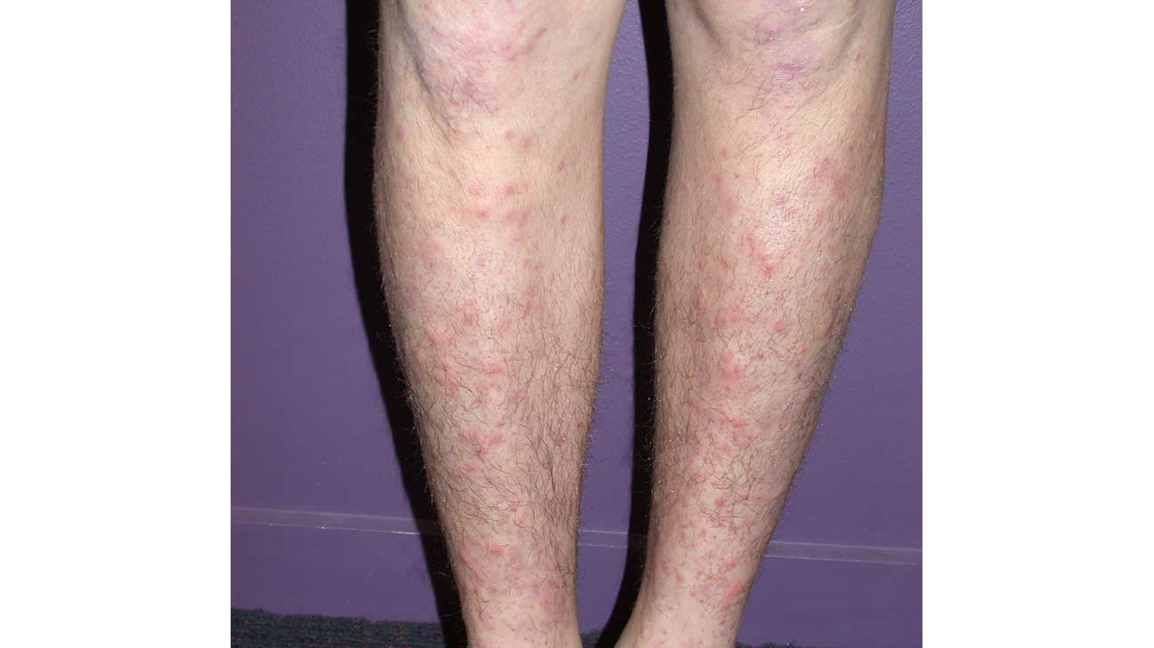 Causes of Red Bumps and Spots on Legs