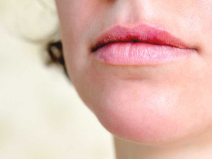 Lip Twitching: Causes, Diagnosis, and Treatment Methods