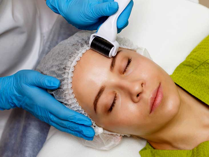 Microneedling for Acne Scars: Effectiveness, Side Effects