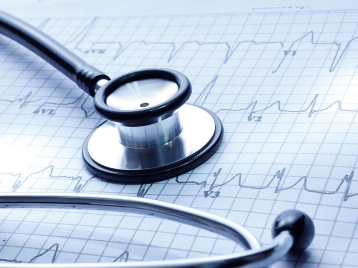 Bradycardia: Symptoms, Causes, and Treatment