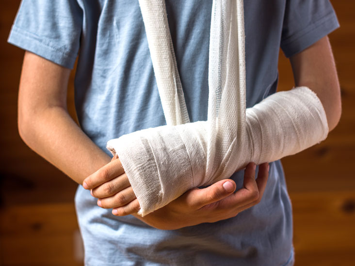 Bone Fracture Repair: Procedure, Preparation, and Risks