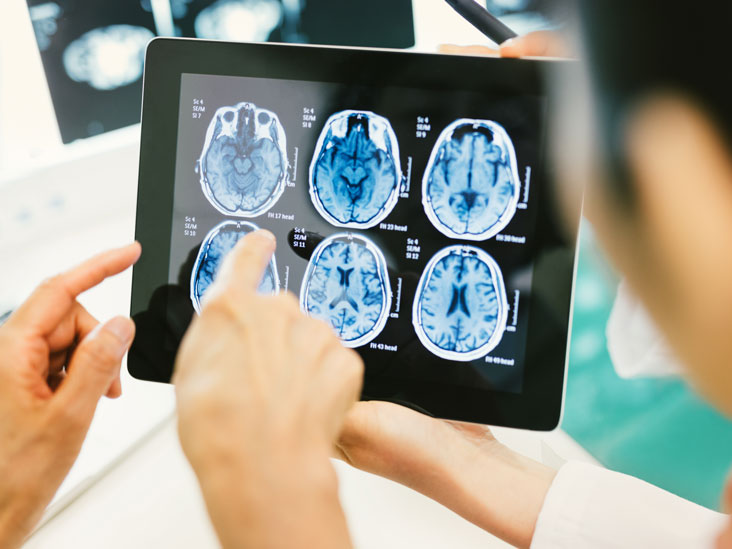 Glioblastoma: Survival Rates, Treatments, and Causes