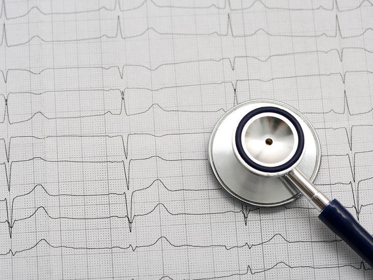 Abnormal EKG: What It Means and Treatment Options