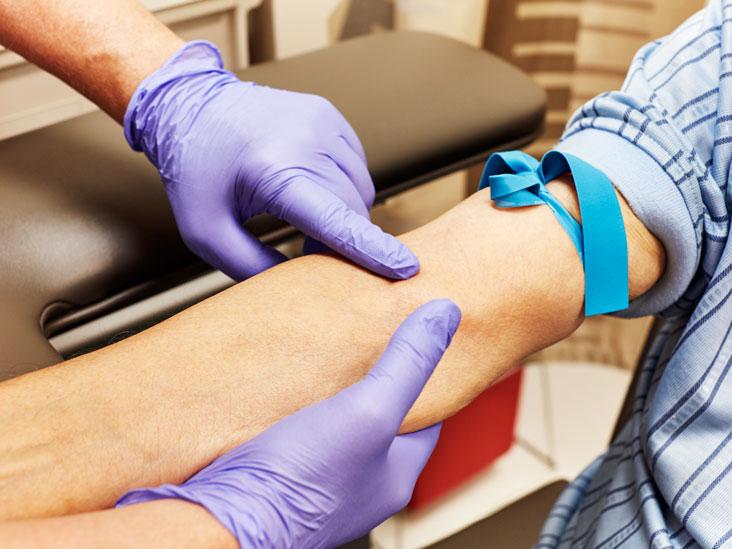 Complete Blood Count (CBC): Types, Preparation & Procedure