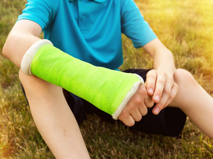 Broken Femur: Causes, Treatment, and Complications