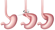 Fundoplication Types Procedure Diet Recovery And