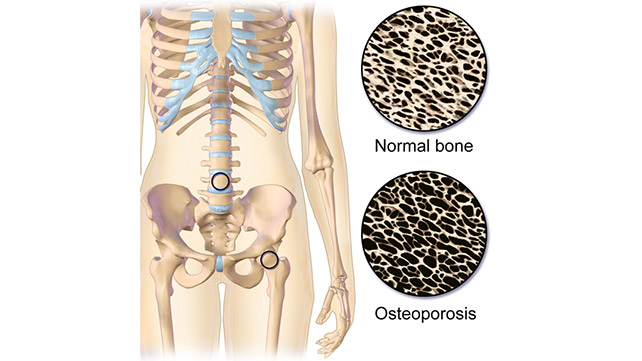 Osteoporosis: Everything You Need to Know
