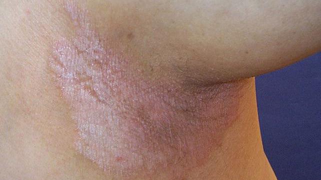 Psoriasis annularis hal