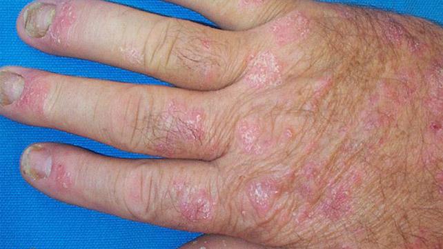 Pictures Of Psoriatic Arthritis Symptoms
