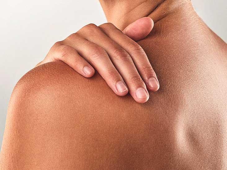 Shingles on Buttocks: Symptoms and Treatment