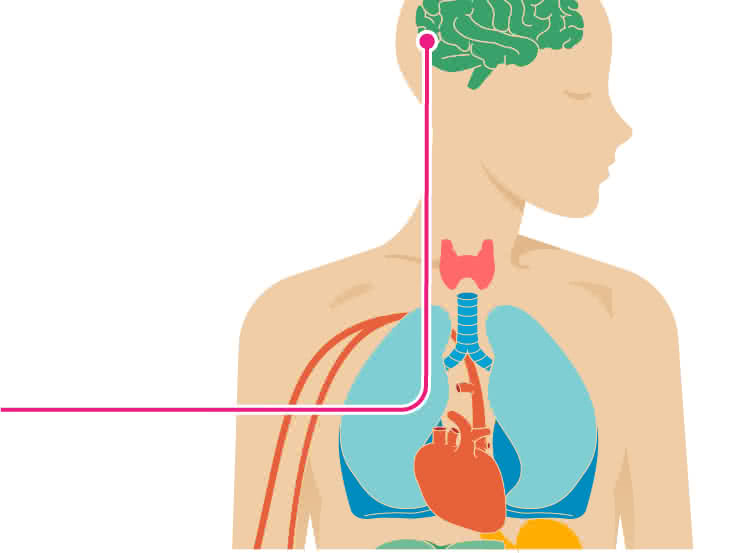Stroke: Symptoms, Causes, Treatment, Types & More