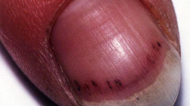 Splinter Hemorrhages: Symptoms, Causes, and Treatments