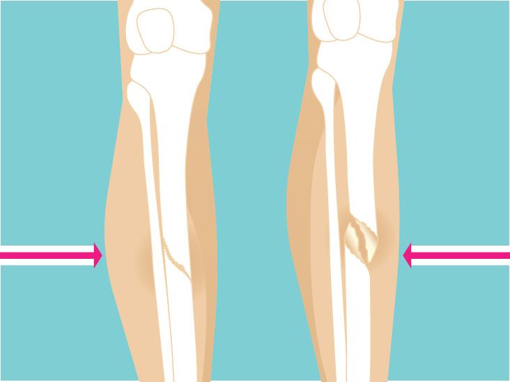 ORIF Surgery: Open Reduction Internal Fixation for Broken Bones