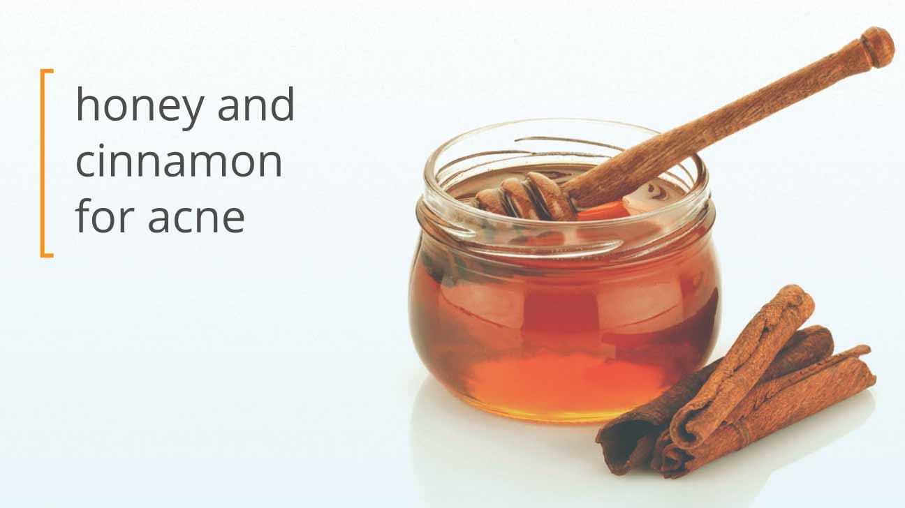 Using honey and cinnamon for acne honey cinnamon and your skin solutioingenieria Choice Image