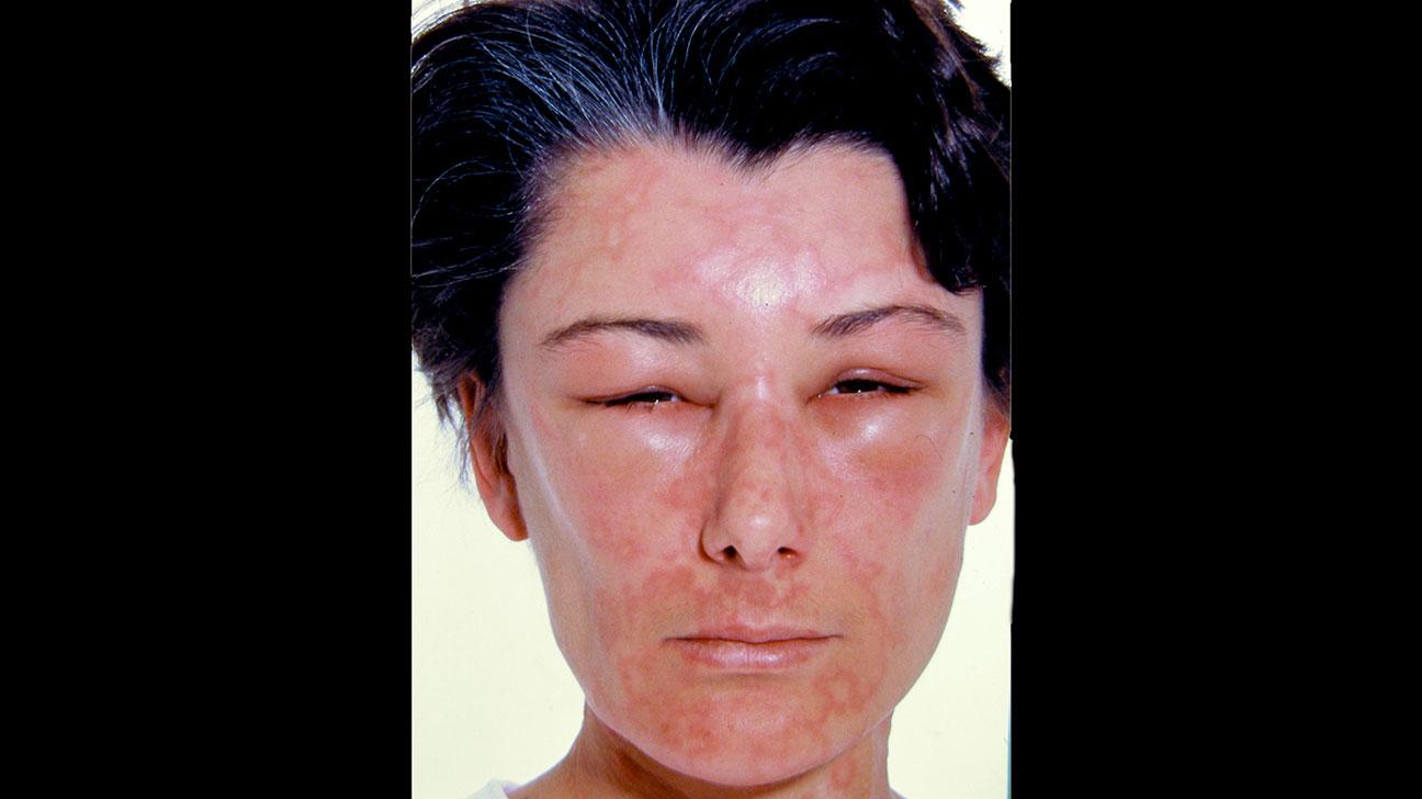 Avocado Allergy Symptoms