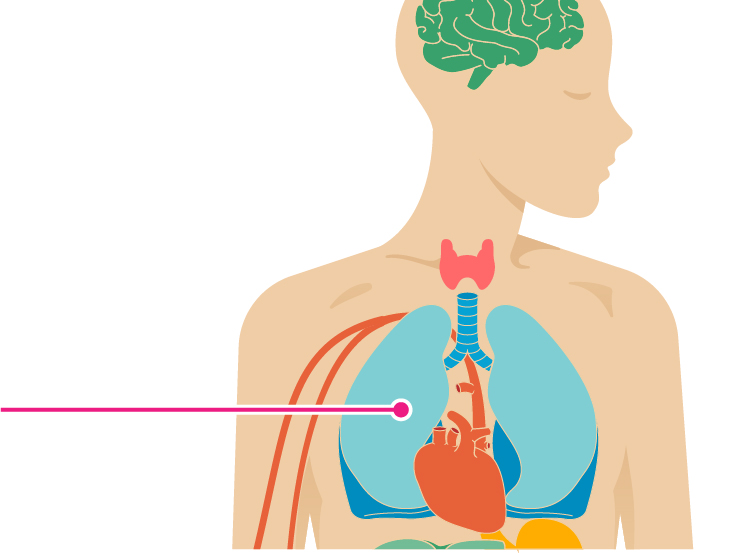 Palpitations and Other Symptoms of Atrial Fibrillation