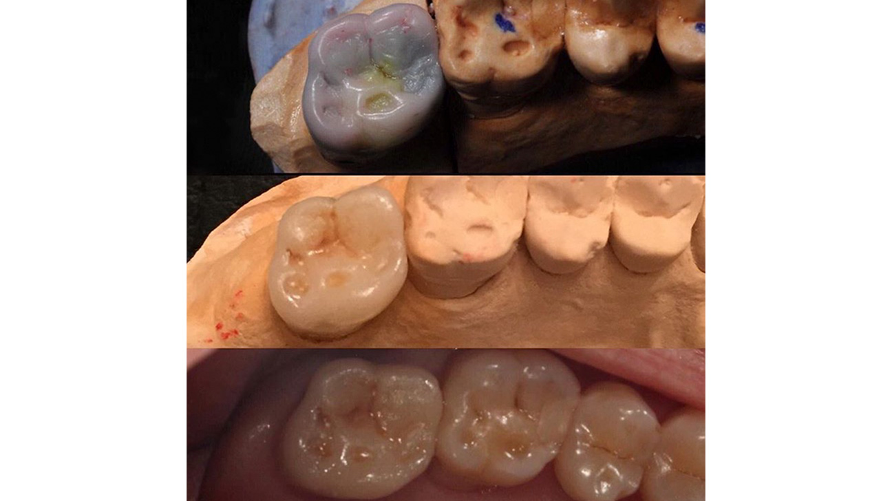 Gold Crown Tooth: Cost and Comparison to Porcelain