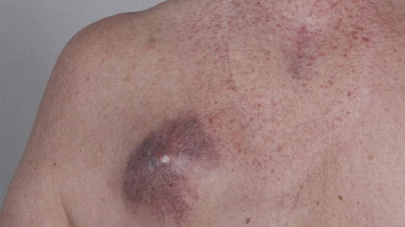 Symptoms And Pictures Of Stage 4 Melanoma