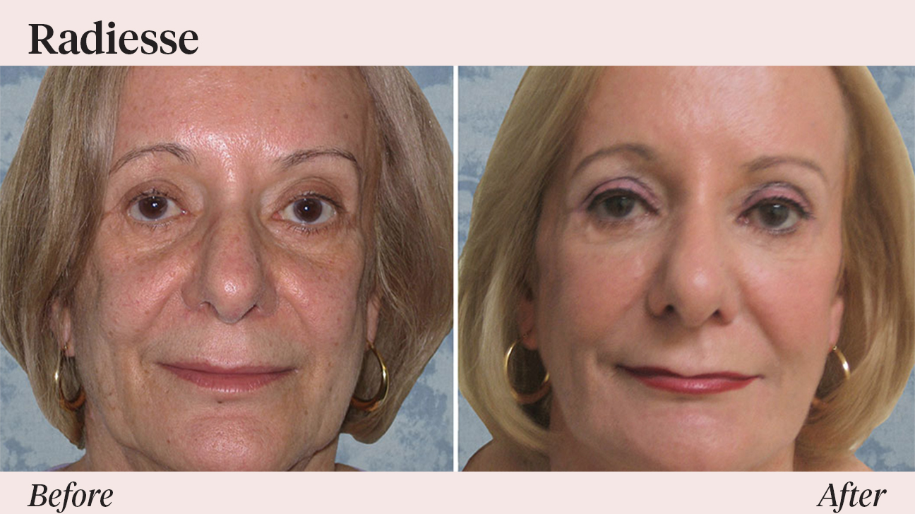 Radiesse vs  Restylane: Comparing the Two Dermal Fillers