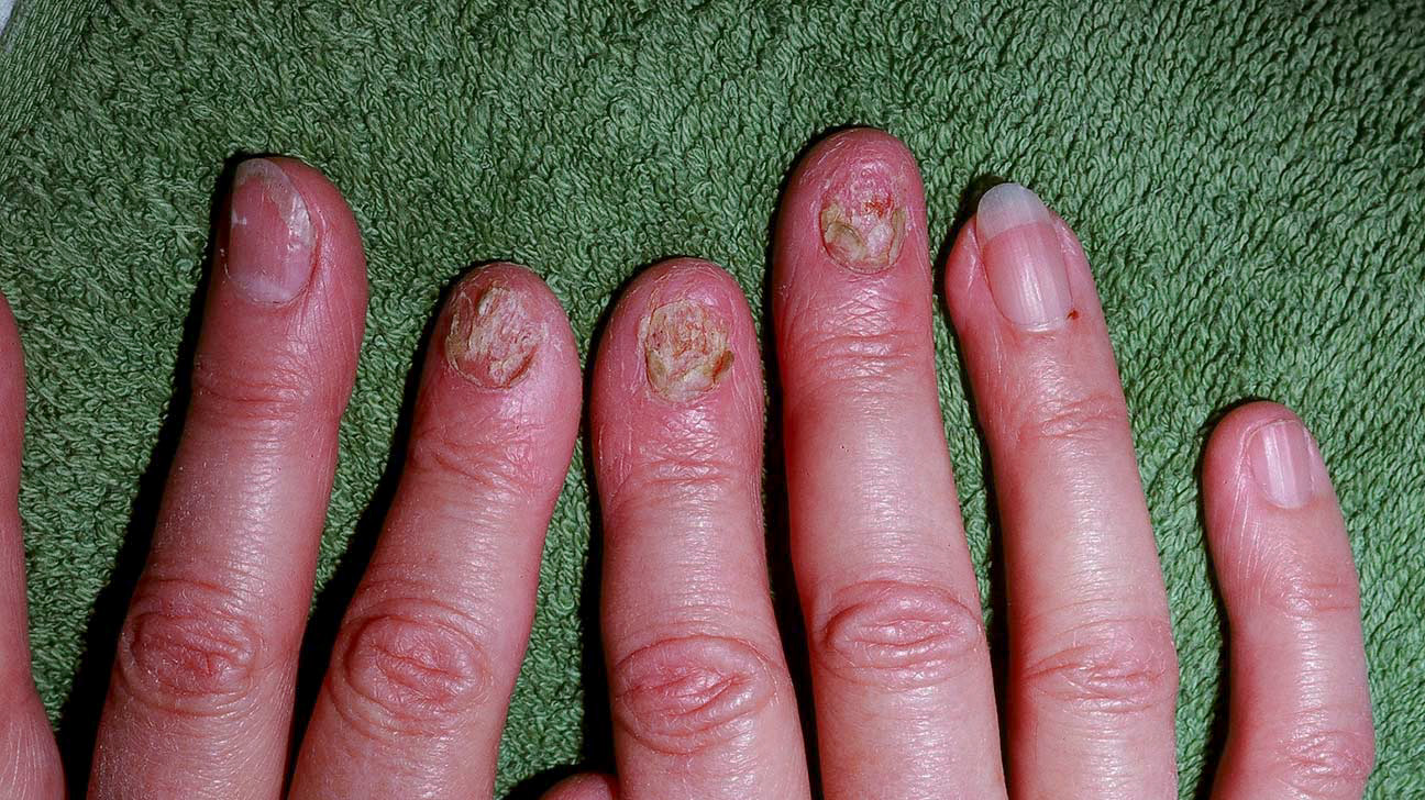 Psoriatic Arthritis Nails: Nail Problems and How to Manage Them