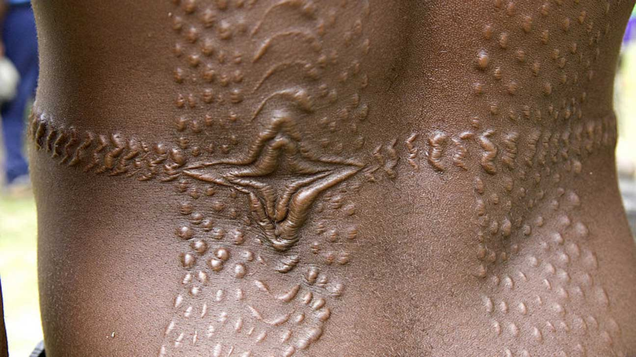 Keloid Tattoo: When Scars Form, Tattooing Over Keloids, More