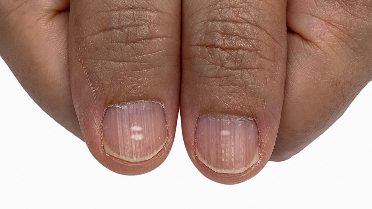 Image result for white spots on nails on a black person