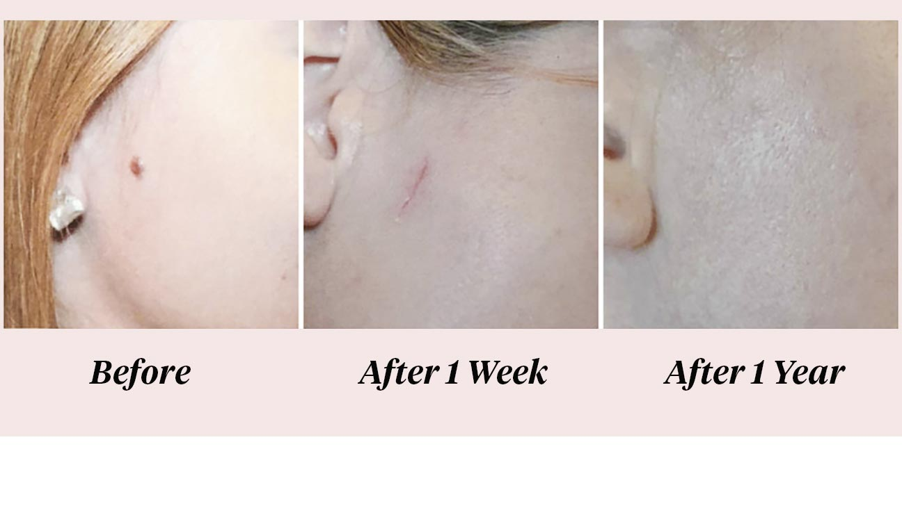 Mole Removal: Scar Chances, Care, and Pictures