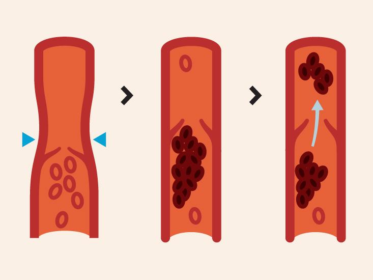 diagram rle dvt wiring diagram gpcommon iliac vein anatomy, function, and diagram body maps diagram rle dvt