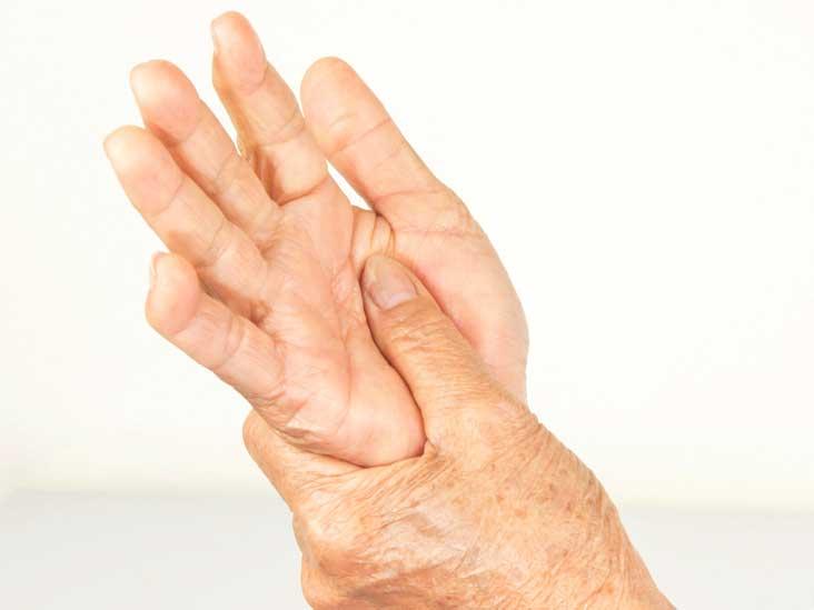 Autoimmune Diseases: Types, Symptoms, Causes, Diagnosis & More