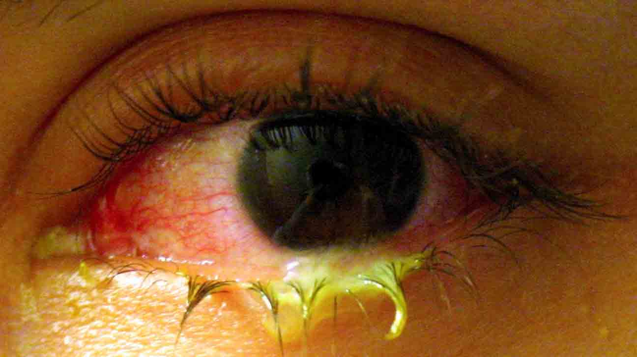 Infected Eye: 8 Common Causes